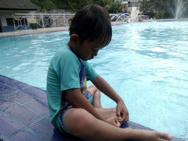 Salah satu anak yang mengeluhkan kakinya terluka