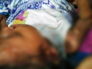 Penyakit Aneh Menimpa Bocah Ini Setelah Divaksin, Dinkes Sarolangun Lakukan Investigasi
