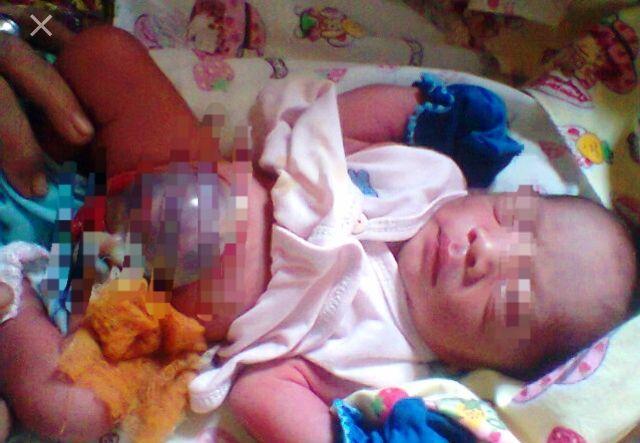 Bayi yang perutnya hanya ditutupi lapisan tipis