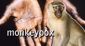 Heboh Soal Cacar Monyet, Kenali Gejalanya Meski Belum Ada Indikasi Terjangkit Di Jambi