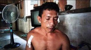 Sedang Tidur di Rumah Teman, Warga Rantau Panjang Ditikam